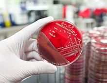 bacterie copy 220 x 170
