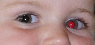 Rode ogen corrigeren